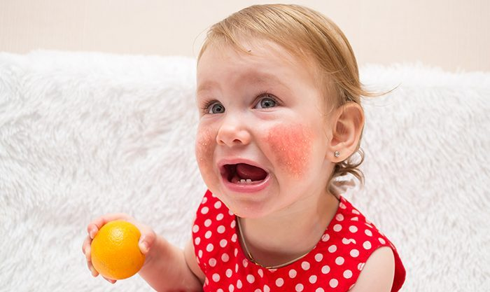 Causes Food Allergies