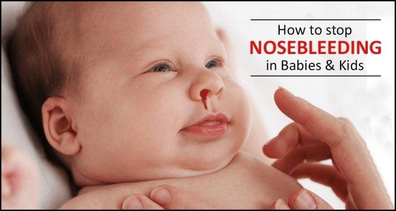 Nosebleed in Babies