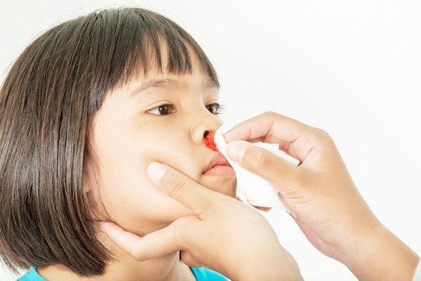 child's nosebleeds