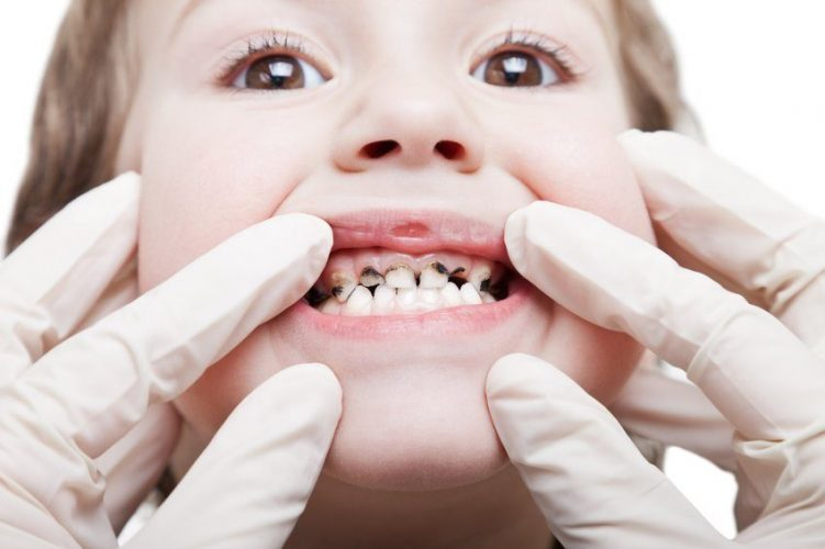 Tooth Decay Dental Problems in kids