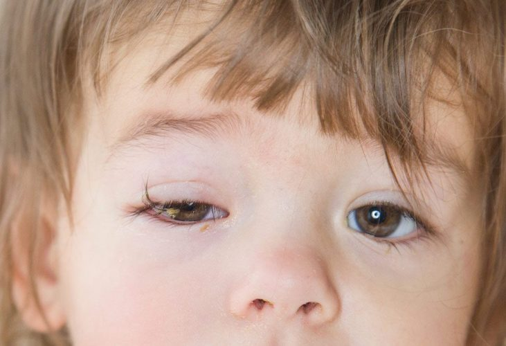Cpnjuctivitis In Kids